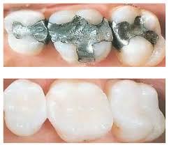 Cerec® crowns & fillings – beautiful teeth in 1 visit
