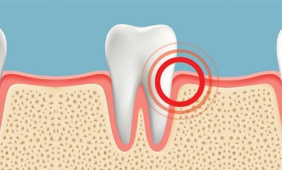 Acute Gum Pain
