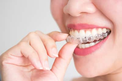 Clear aligners + Invisalign